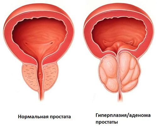 prostate adenoma olcsó prosztatagyulladás elleni gyógyszerek